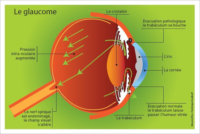 Schéma de l'oeil dans le cas d'un Glaucome