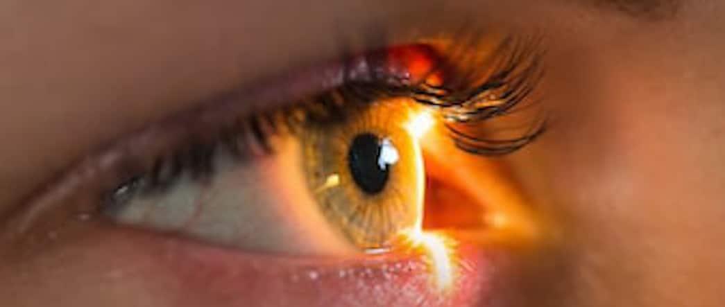 oeil avec Retinopathie diabetique