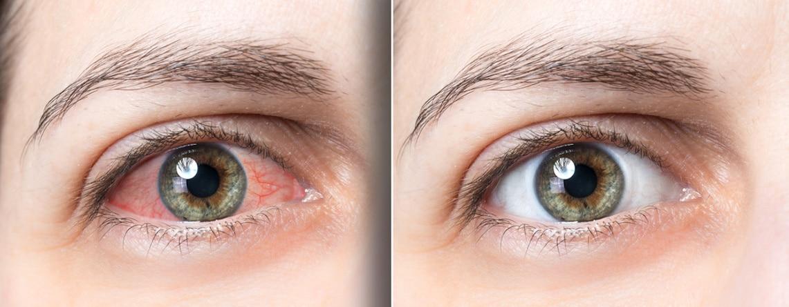 oeil rouge avec un glaucome