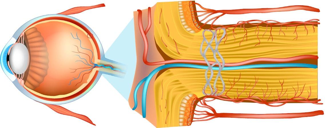 anatomie de l'oeil, schema du nerf optique, maladie de Leber